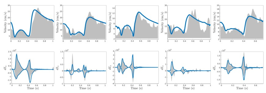 An example of 1D coronary flow model fitted to patient-specific data. Bottom row shows that coronary wave intensities can be accurately reproduced