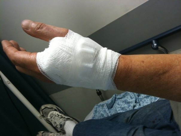 This individual did not wear gloves while working with a power tool and it cut between his thumb and index finger a 2-inch length laceration requiring surgery and stitches.