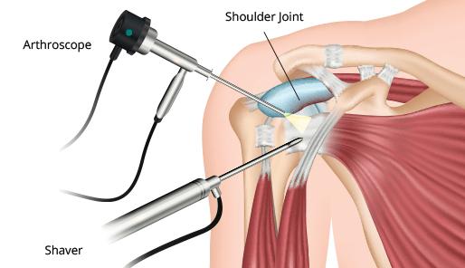 Arthroscopic Shoulder Stabilization