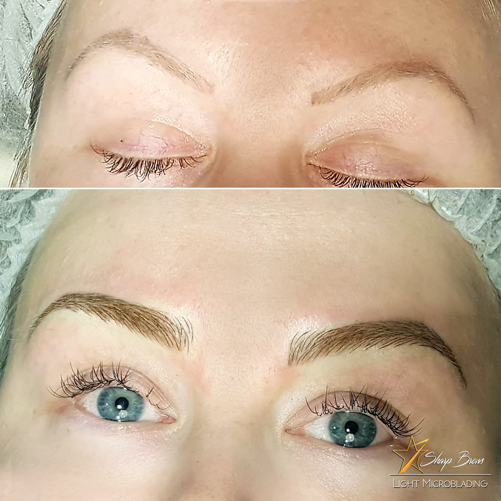 Light microblading on top of old pigmentation. The change is complete and total. More and more clients choose Light microblading with some shading over old pigmentation.