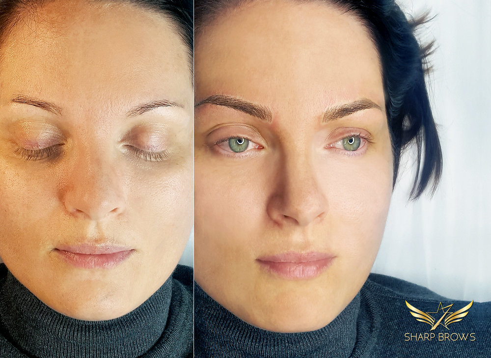 SharpBrows Light microblading A sample how much the face changes with SharpBrows Light microblading technique.