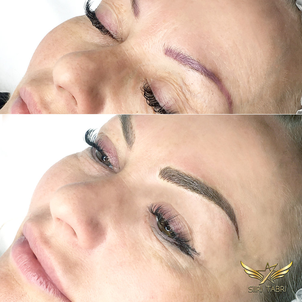 SharpBrows Light microblading - Quite bad pigmentation case fixed completely with SharpBrows Light microblading and some Light shading.