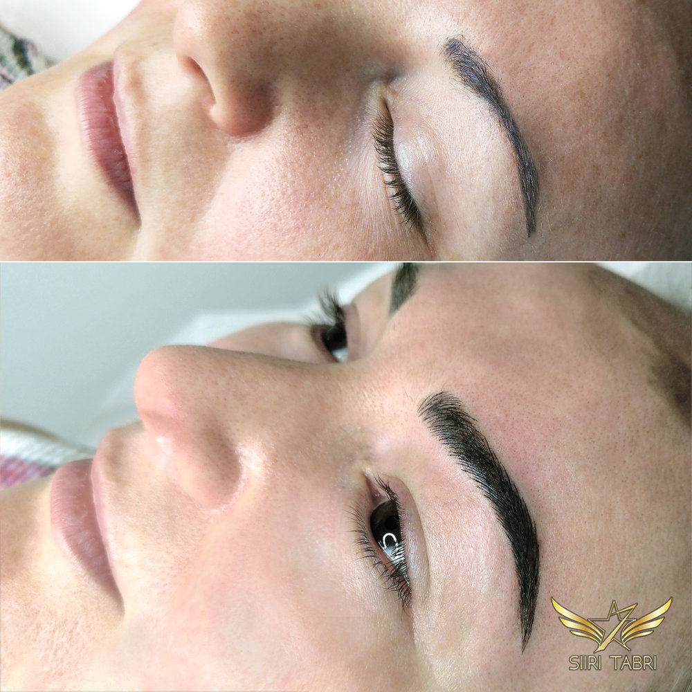 Light microblading - A pretty interesting pigmentation fixed with Light microblading + Light shading. When we removed the makeup the situation was pretty strange. Luckily we managed to save the brow with Light microblading.
