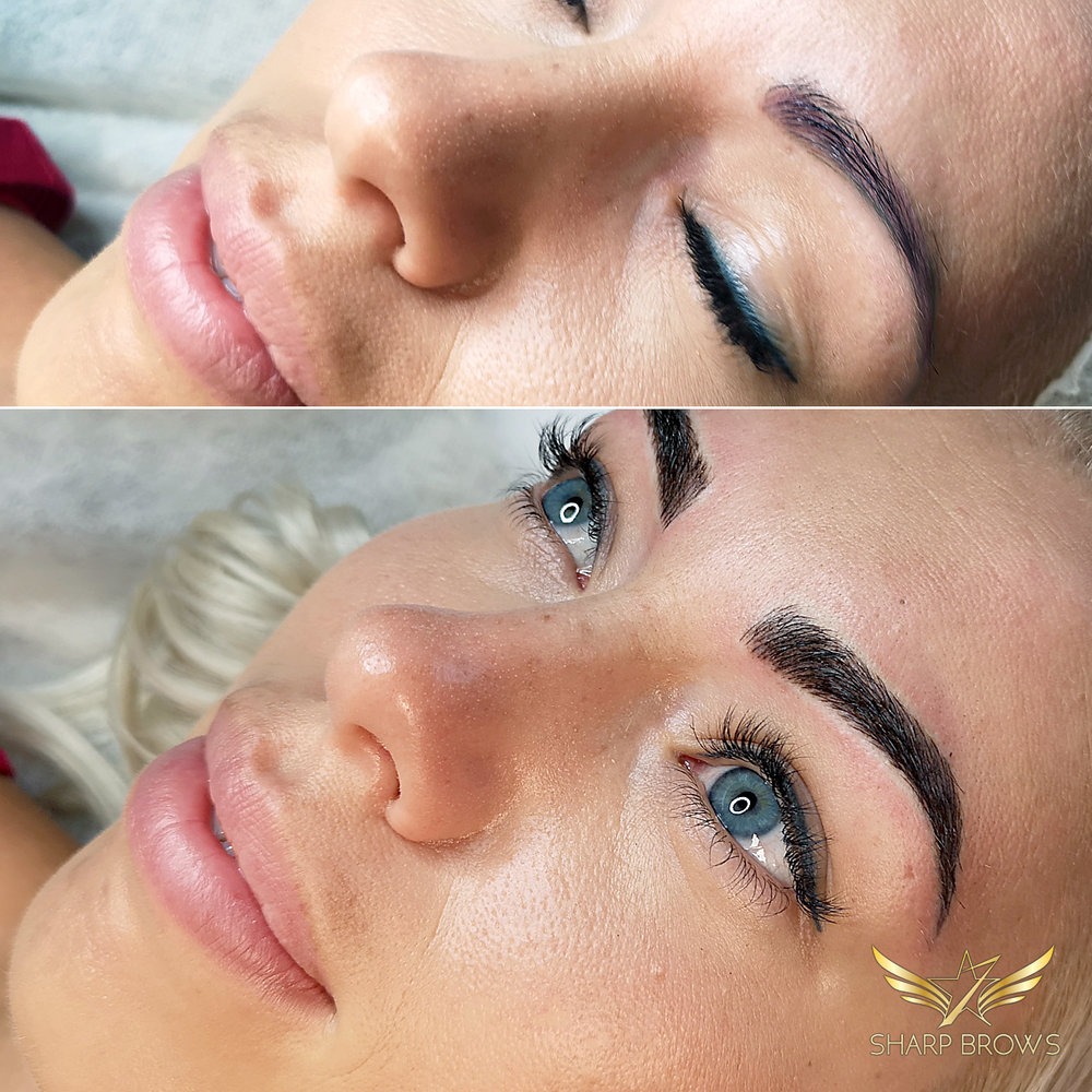 Light microblading. Pretty outdated and quite bad pigmentation saved flawlessly with Light microblading. The result is lush natural brow.