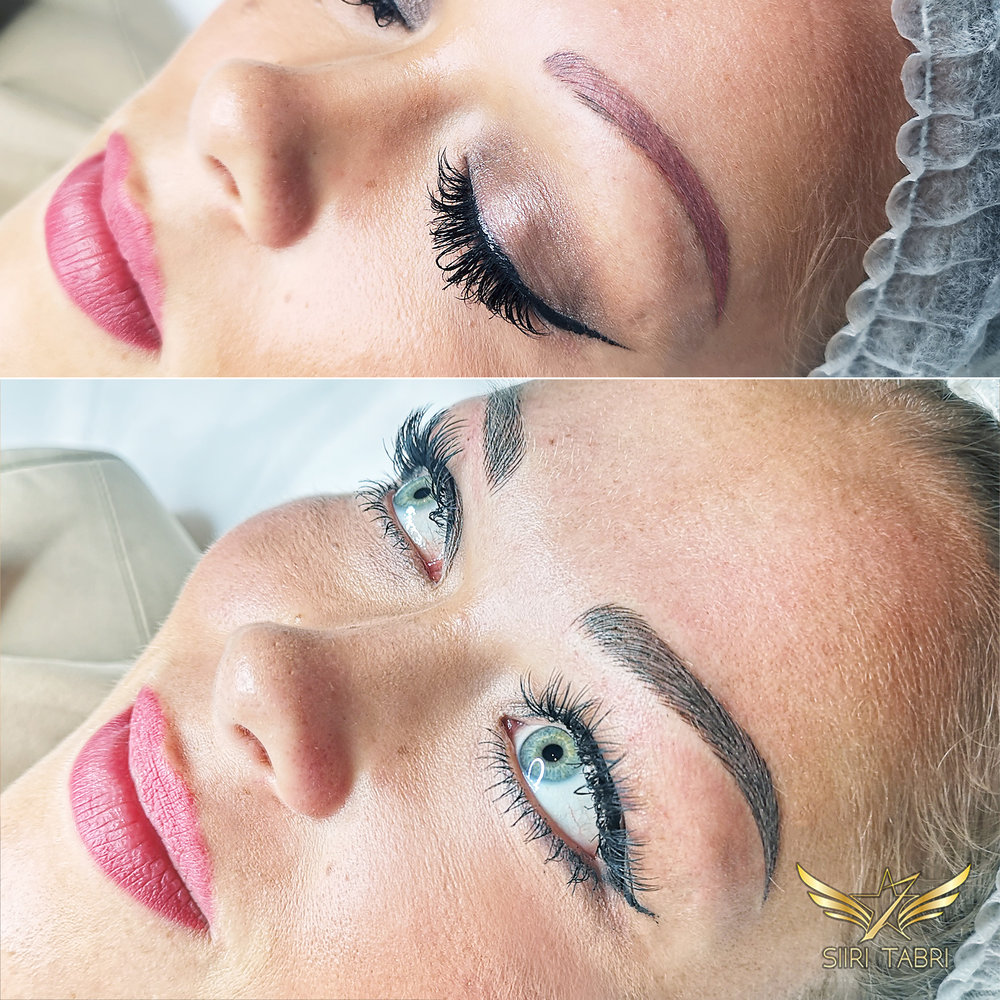 Light microblading. Very often the starting situation is really challenging. With Light microblading even quite strong pigmentation can be made to look natural.