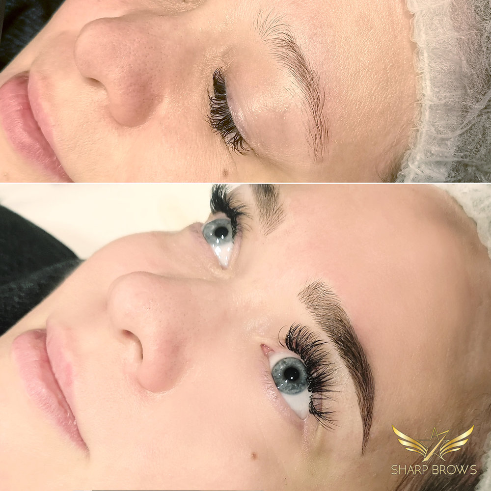 Light microblading. The change in this facial expression was just literally unbelievable.