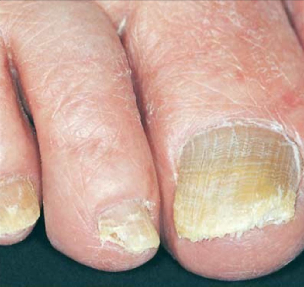 How tea tree oil toenail fungus can Save You Time, Stress, and Money.
