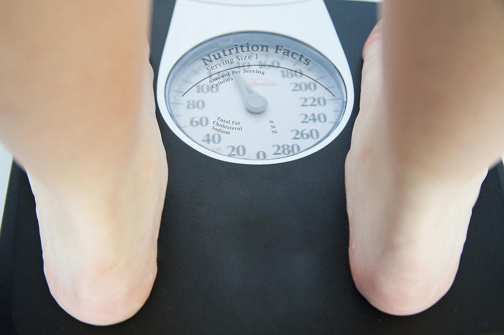 Weight loss and varicose veins