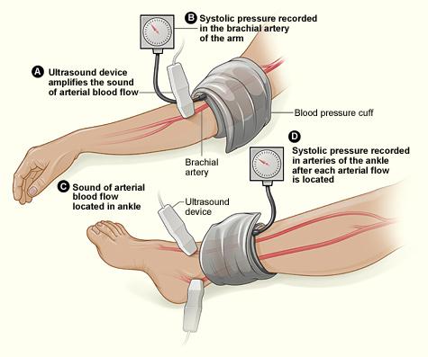 Vascular Screening