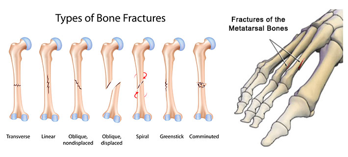 Foot Clinic Midmichigan Foot Problems Foot Fractures Vascular