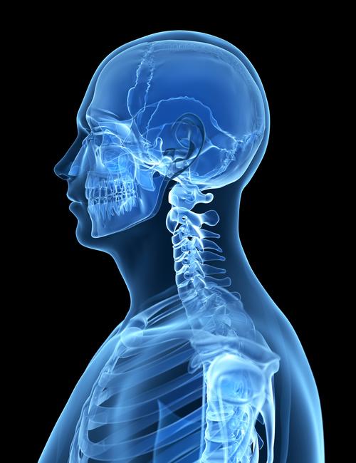 neck ache osteopath