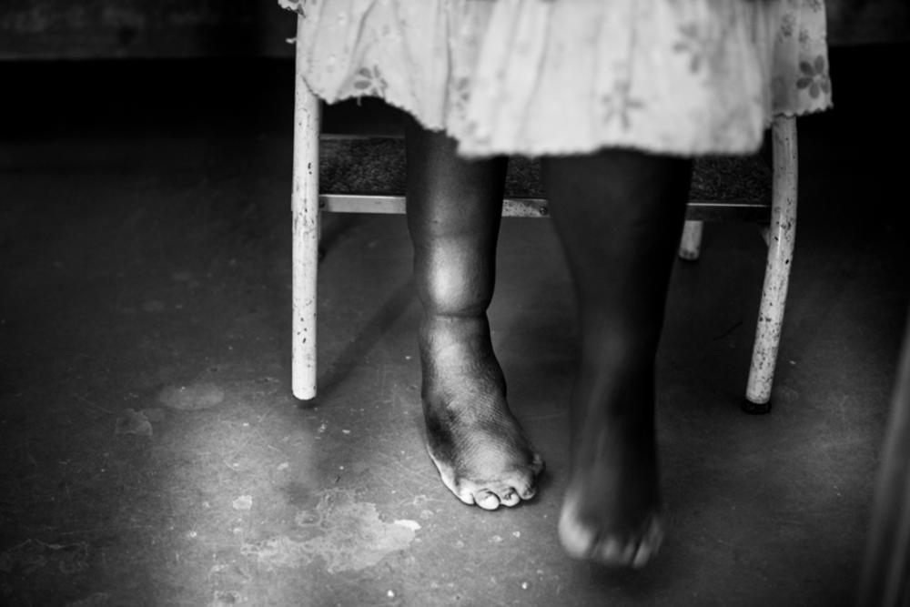 ©GerbrandVanUytvanck_MedicsWithoutVacationRwanda_WEB_002.jpg