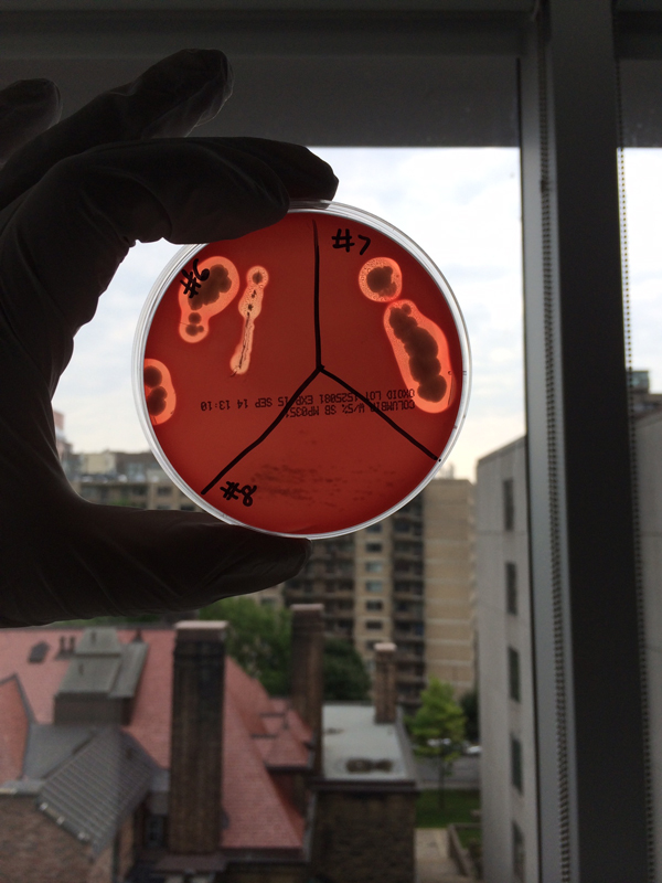 ANTIBIOTIC-PRODUCING ISOLATES FROM SOIL ON BLOOD AGAR
