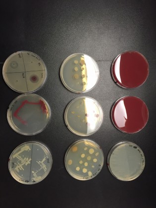 NINE OF KRISTEN BURNHAM'S PETRI DISHES. THE TWO DISHES ON THE RIGHT ARE COVERED IN A DEEP RED GROWTH OF  V. RUBER . THE DISH ON THE UPPER LEFT IS DIVIDED INTO QUADRANTS TO TEST FOUR DIFFERENT TYPES OF BACTERIA FOR ANTIBIOTIC ACTIVITY. THE FUZZY HAZE COVERING MOST OF THE DISH IS  B. SUBTILLIS , A REFERENCE SPECIES.  V. RUBER , ON THE LOWER RIGHT QUADRANT OF THIS DISH, IS SURROUNDED BY A CLEAR AREA WHERE NO  B. SUBTILIS  WILL GROW, EVIDENCE OF  V. RUBER 'S ANTIBIOTIC POWERS. (KIM KRIEGER/UCONN PHOTO)