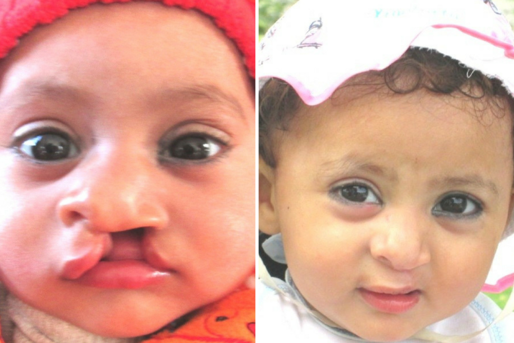 Muntaha, before her surgery, left, and, right, after the operation