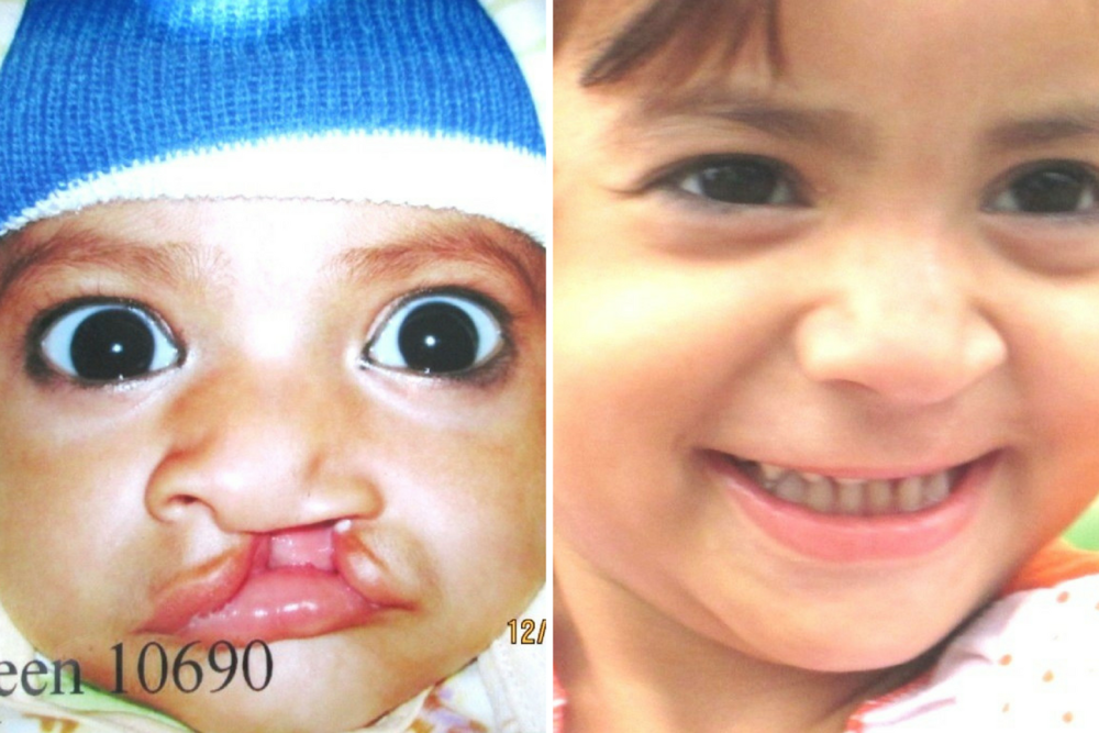 Mursleen, before and after surgery by the Opsa team at the Cleft Hospital