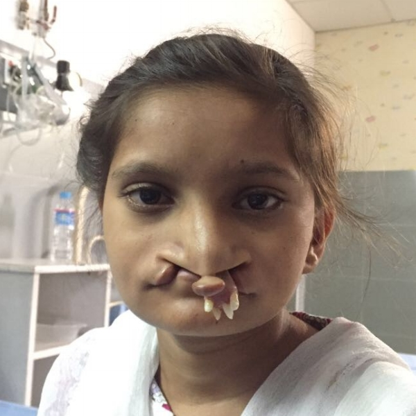 Maria aged 10, having waited for her surgery due to a heart condition which needed attention first