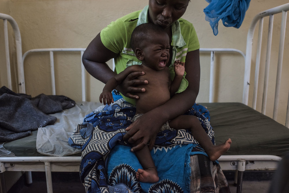 Faida Rabison, holds her daughter Ness, 11 months, who is suffering from severe malnutrition at the Ngalou Rural Hospital on September 9, 2016 in Chikwawa, Malawi. The hospital had seen 66 cases of severe malnutrition in the past four months.