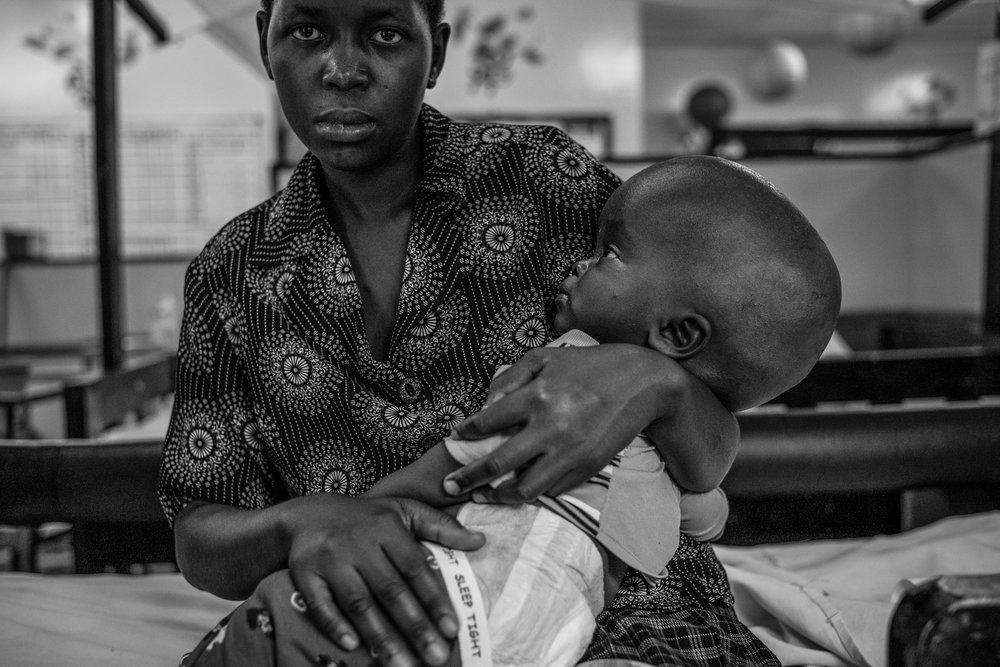 A mother with her son, who was diagnosed with Hydrocephalus at Cure Hospital on February 4, 2017 in Mbale, Uganda.