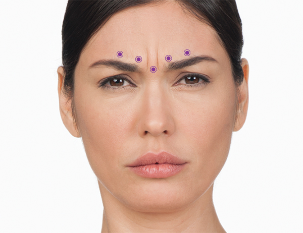 For the frown lines area, your specialist will administer 5 injections into muscles in your forehead—1 in the procerus muscle and 4 in the corrugator muscles. Injecting BOTOX® Cosmetic into the muscles that cause frown lines temporarily reduces the activity of those muscles. The result is a reduction in the appearance of those lines.