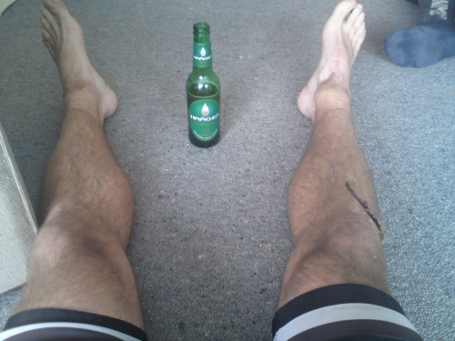 Lycra, dusty legs, blood, post race brewski.