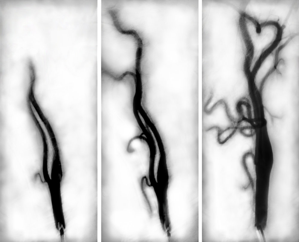 "HONORABLE MENTION  - Lesley Taylor | ""Angiogram Triptych"" 