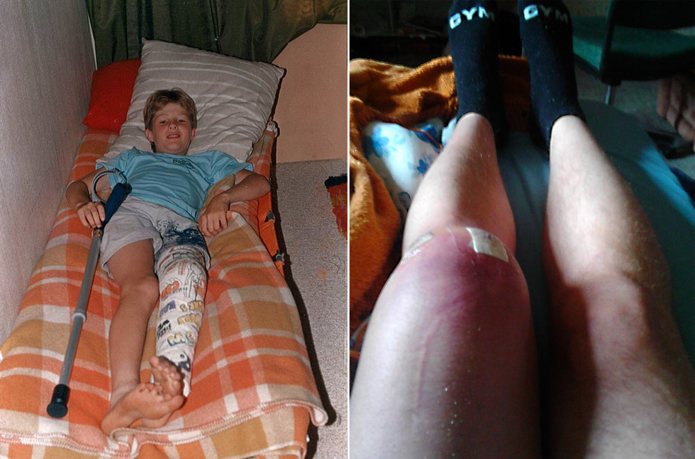 Matt at nine years old after knee surgery, and in July of last year a week after knee surgery.