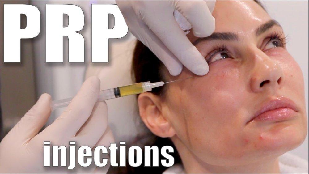 Facial PRP