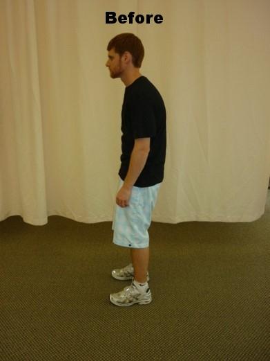 poor posture.jpg