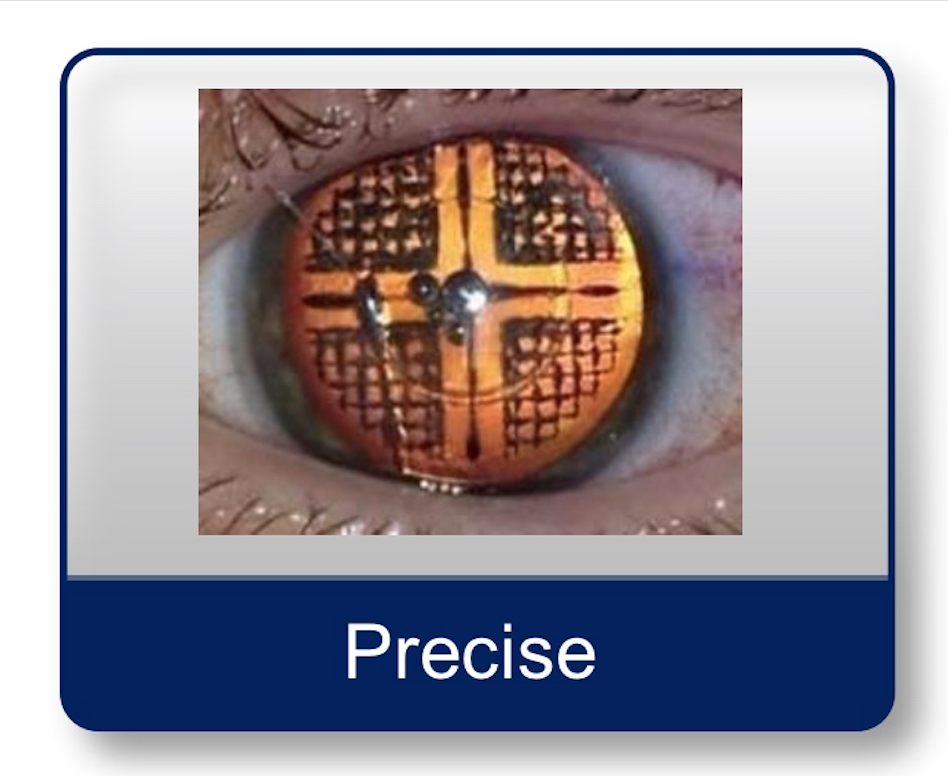 Precise Laser Cataract Surgery