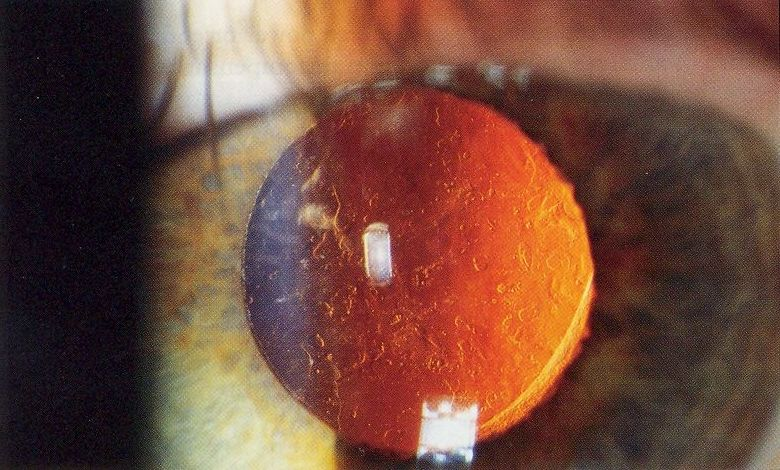 Posterior_capsular_opacification_on_retroillumination.jpg