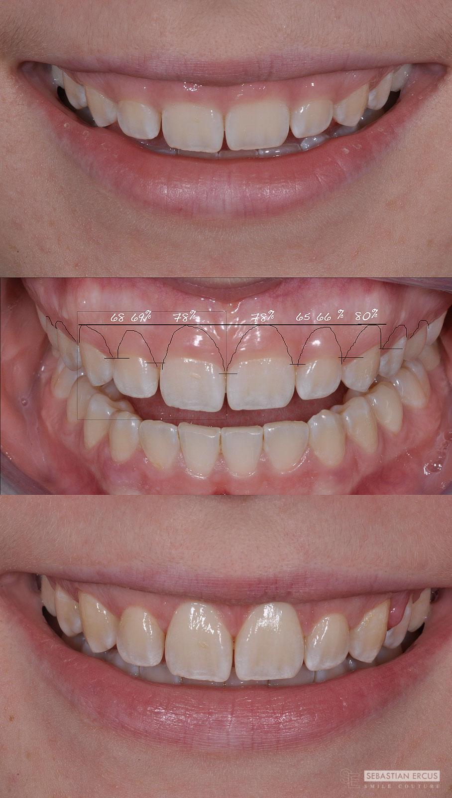 3e637903ee15d3 La chirurgie plastique parodontale peut avoir un effet marqué sur votre  dentition.