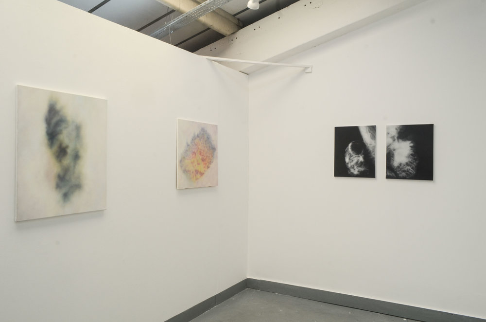 'Lovely in Her Bones' Solo show