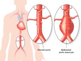 abdominal-aorta-scan-265x200.jpg