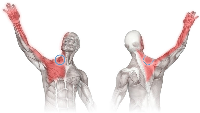 It is very easy for these nerves to become compressed. When this happens, pain can occur anywhere from the neck to the hand even though the actual site of compression can be elsewhere.