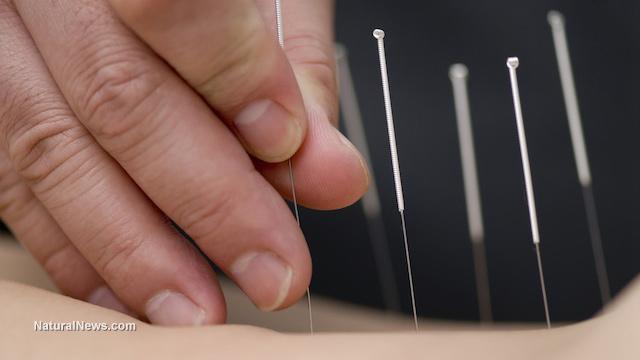 Acupuncture (2).jpg