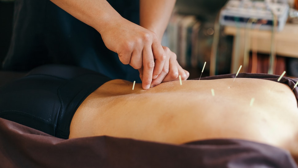 8 Signs you should try acupuncture - Read article.
