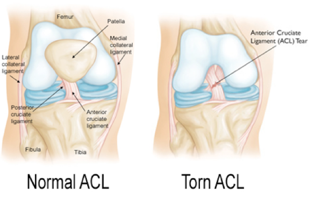 Acl Injuries And Physical Therapy Sarrica Physical Therapy