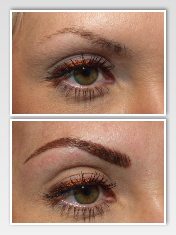 Before and after right brow