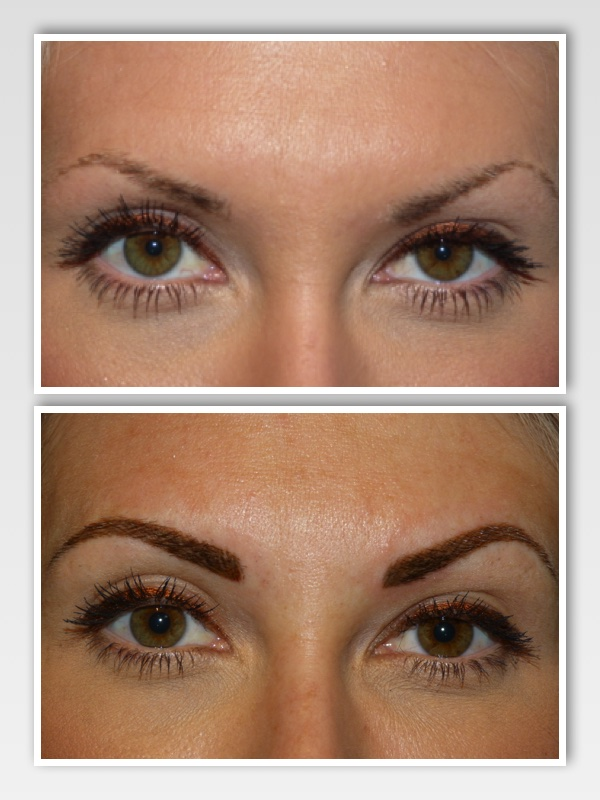Before and after brow front view