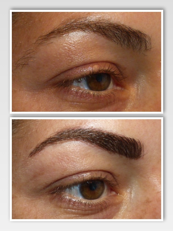 Before & After | Right Brow -
