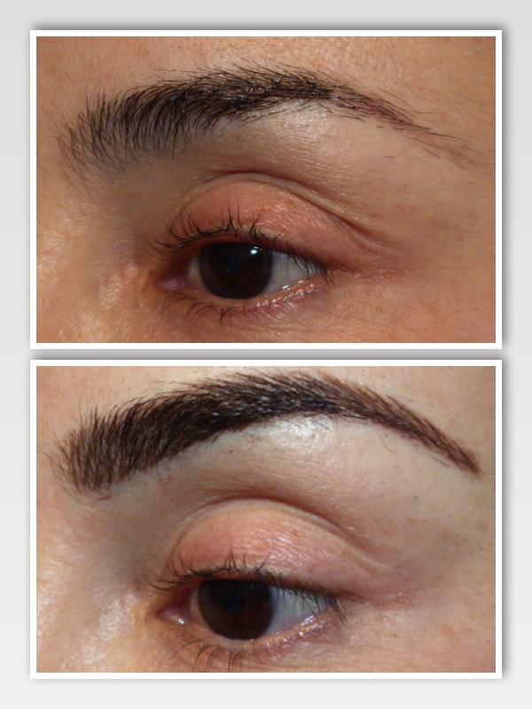 Before & After | Left Brow -