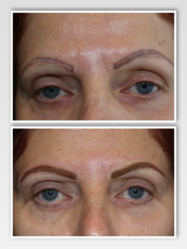 The new eyebrows were done after re-design and with advanced technique micro-stroking to simulate eyebrow hair. Note the change to the facial expression with the altered shape.