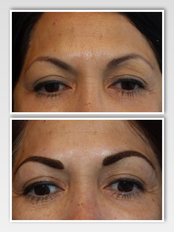 Client presented with eyebrow tattoo that had faded to a purple color. This was the result of too much red base in a cool (blue) brown pigment -  when combined with her skin tones changed with fading to an esthetically unpleasing tone. Brows were also designed too thin for client's high brow bone structure.