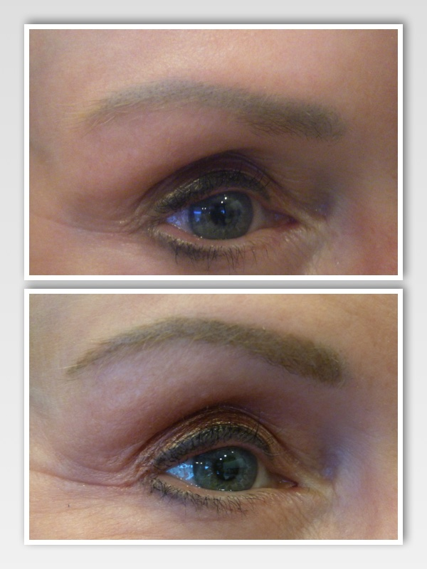 Client presented with previously tattooed eyebrows. The color originally used was too cool and ashy for her translucent skin type. The results were a grey/blue color after the color began to fade with time.