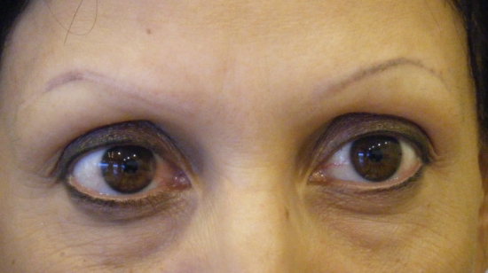Client presented with Alopecia, an auto-immune disorder that causes partial to full body hair loss. An attempt had been made to tattoo her eyebrows, but the initial result was highly asymmetrical and misshapen.  The above photo shows the brows after the removal. Removal of the original tattoo was done within a short time post procedure to allow for re-design and a proper color tone and technique.