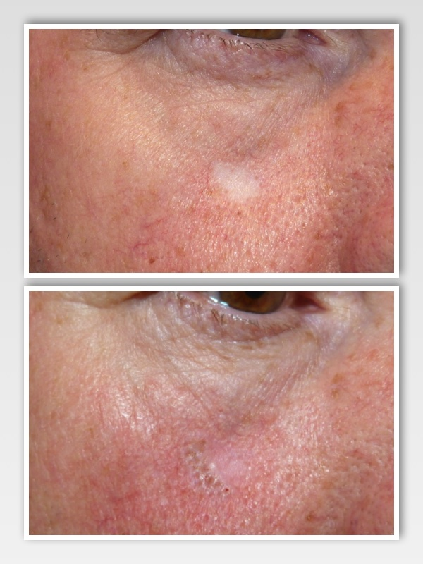 Skin cancer removal scar.  Client received micro needling to improve the tone and texture of the scar, and a light camouflage pigment was introduced to blend the scar into the surrounding skin.