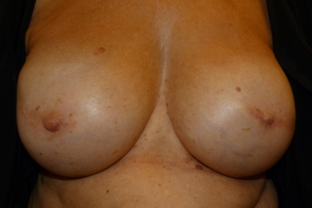 Areola 1 before.JPG