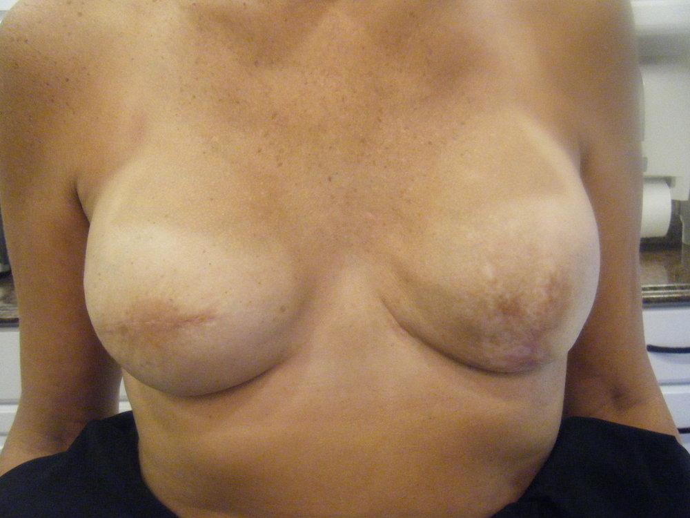 Areola 2 before 3D nipple tattoo and areola.jpg