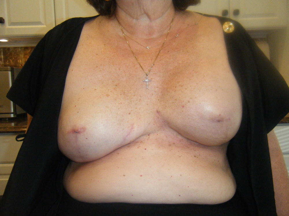 Areola 3 Before .JPG